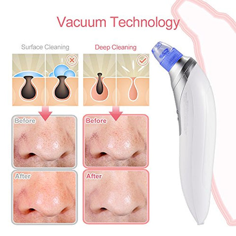 MIJNUX Blackhead Instrument Blackhead Pore Cleaner to Blackhead Artifact Electric Acne Machine to Blackhead