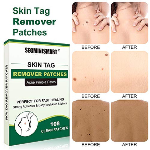 Skin Tag Remover Patches, Mole Remover, Acne Pimple Healing Patches, Covers and Conceals Skin Tags, Skin Treatment, Facial Stickers, Two Sizes(108 Patches)