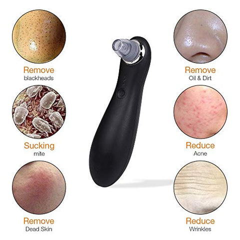 LLYU Nose Blackhead Remover Acne Pimple Vacuum Black Dots Pure Cleaner Face Cleaning Skin Tag Removal Face Care Tool Machine For Acne