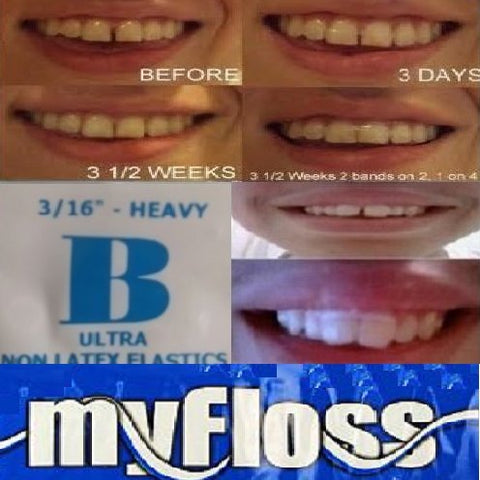 ORTHODONTIC GAP TEETH BANDS 3/16 HEAVY&FLOSS, 1 Pack of 100
