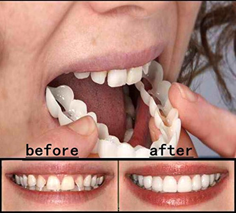 REFIT Cosmetic Dentistry Snap On Smile Instant Perfect Smile Comfort Fit Flex Teeth Fits Most False Teeth Upper Tooth Cover Massager