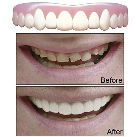 Imako Cosmetic Teeth 2 Pack. (Small, Natural) Uppers Only- Arrives Flat. Fit at Home Do it Yourself Smile Makeover!
