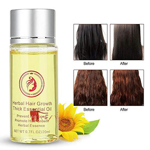 Hair Growth Serum, Anti Hair Loss Hair Growth Treatment Hair Loss and Hair Thinning Renewing Penetrating Essential Product For All Hair Types