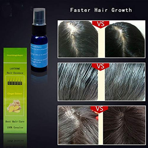 SAUJNN 100% Effective Anti Hair Loss Liquid Hair Growth Spray for Dry Hair Regeneration Repair Moisturizing Serum Treatment Hair Care