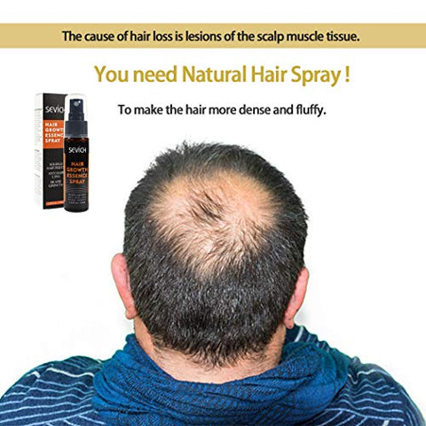 Hair Regrowth Spray 2 Pack, Anti Hair Loss, Thinning, Balding, Natural Ingredients Hair Regrowth Treatment for Stronger, Thicker, Longer Hair Grow,Repair Hair Follicles