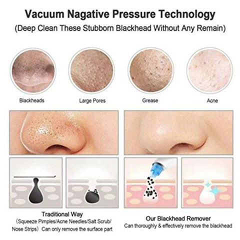 Blackhead Remover Vacuum Suction Nose Facial Pore Cleaner Spot Acne Black Head Pimple Removal Beauty Face Skin Care Suction Tool