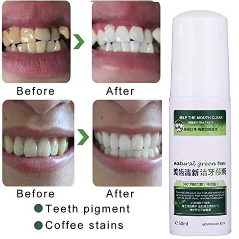 Tartar Removal Solution 60ml Teeth Cleansing Foaming Cleanser Tartar Removal Solution Fresh Breath Mouth Care