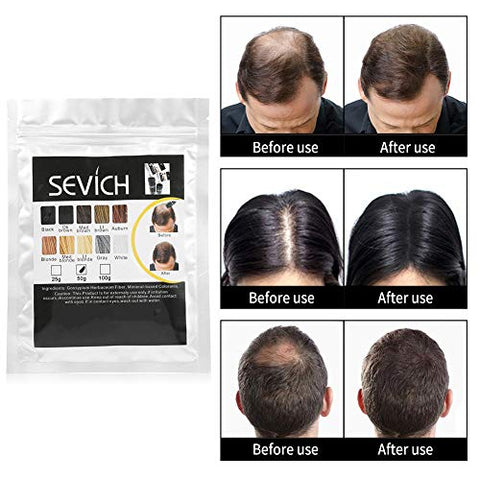 ????????????????????????? ???????????????? ?????????????????Simlug Hair Building Fiber for Thinning Hair(Medium Brown)