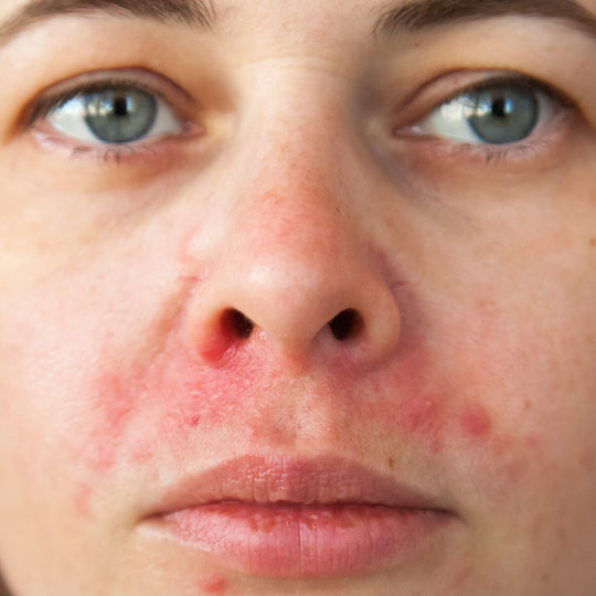 perioral dermatitis tips to treat
