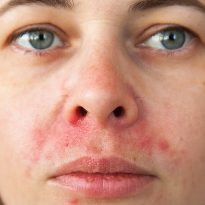 perioral dermatitis treatment