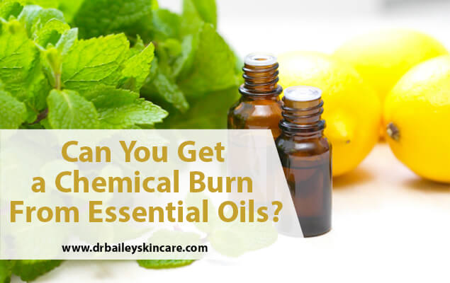 Can you get a chemical burn from essential oils