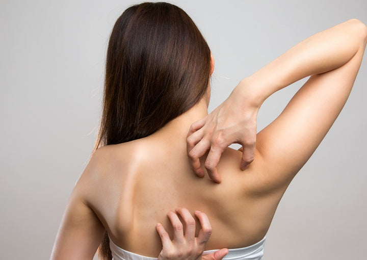 itchy back notalgia paresthetica