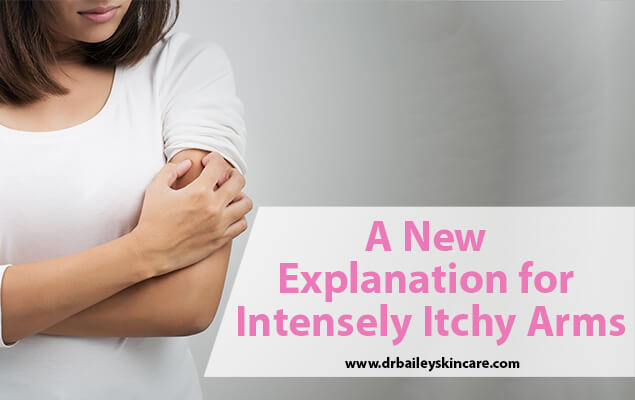 A New Explanation for Intensely Itchy Arms
