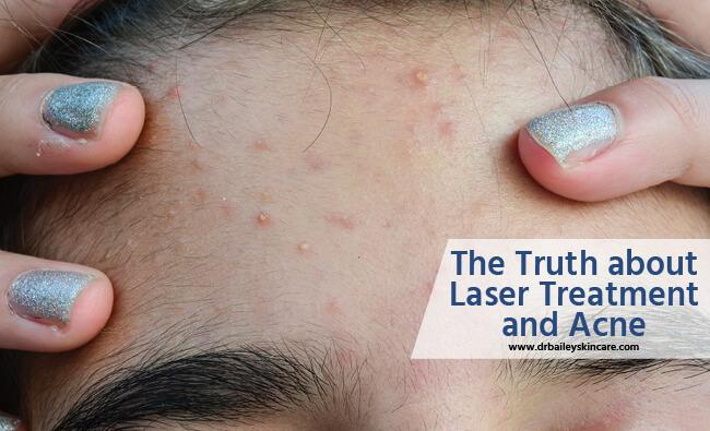 truth about laser treatment and acne