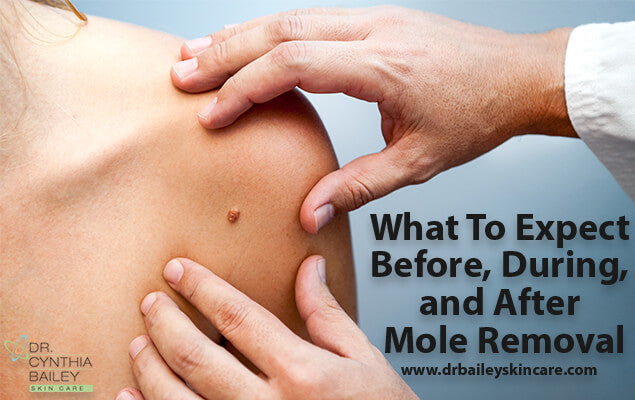 What To Expect Before, During, and After Mole Removal