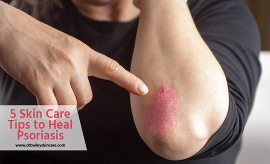 skin care tips to heal psoriasis