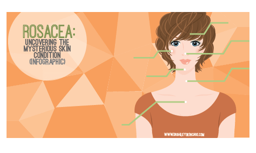 Rosacea: Uncovering the Mysterious Skin Condition (Infographic)