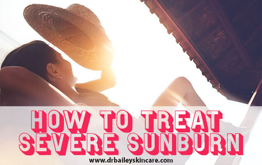 How to Treat Severe Sunburn