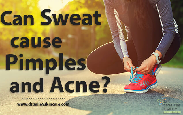 can sweat cause pimples and acne