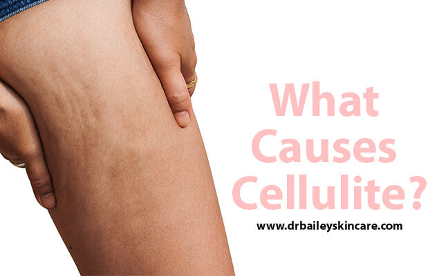 What Causes Cellulite?