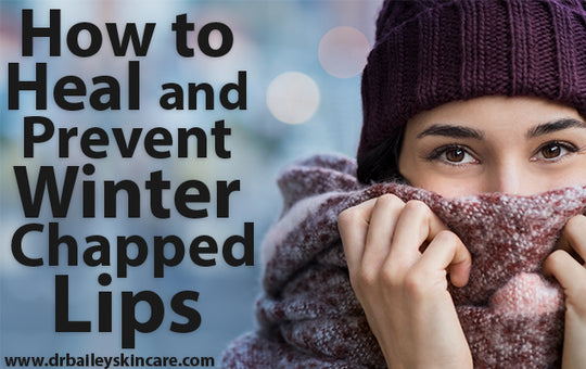 How to Heal and Prevent Winter Chapped Lips