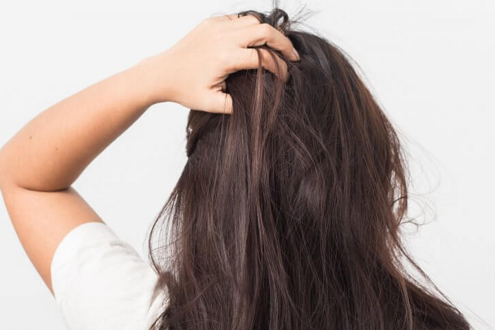 how to use dandruff products for dry itchy scalp