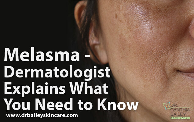 Melasma - Dermatologist Explains What You Need to Know