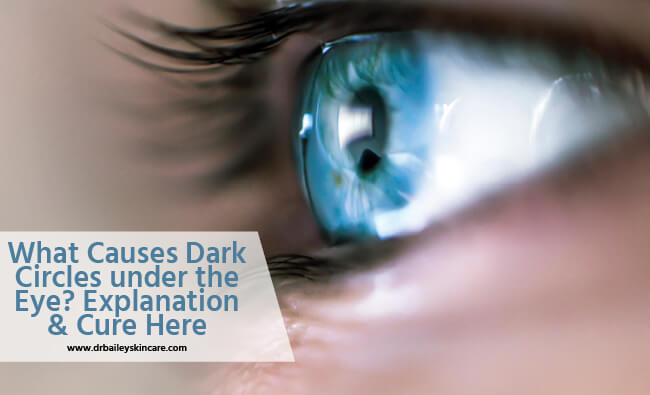 what causes dark circles under the eye