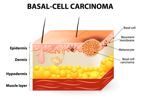 what is a basal cell carcinoma of the skin