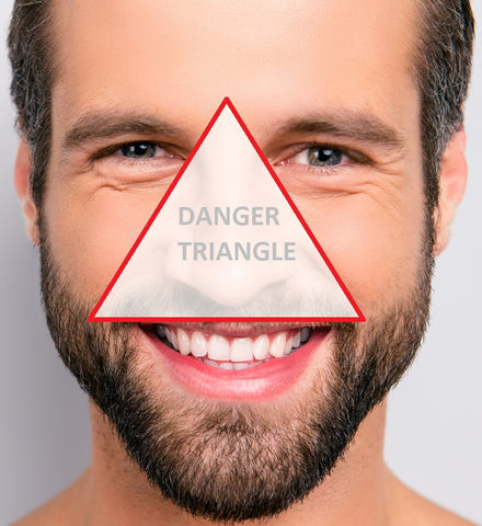 danger triangle of the face how to pop a pimple