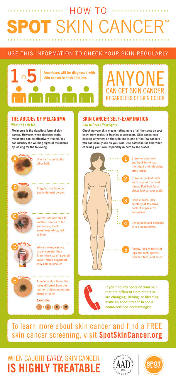 melonoma Monday AAD How to SPOT Skin Cancer Infographic