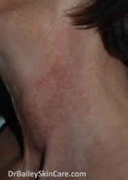 hyperpigmentation and dark spots from Poikiloderma of Civatte