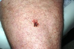 Early Melanoma