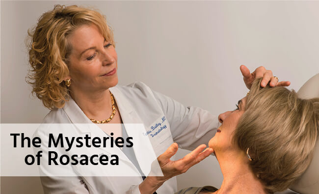 Mysteries of Rosacea