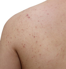 dermatologist-approved back and body acne treatment