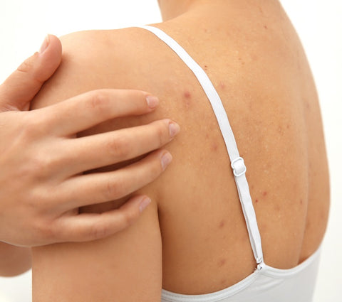 back and chest acne treatment