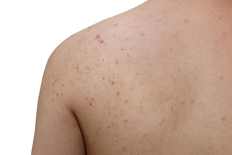 back and chest acne Pityrosporum folliculitis treatment