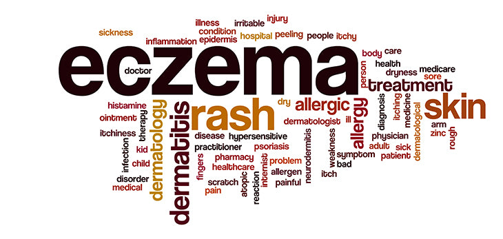 dermatologist's tips to treat eczema yourself
