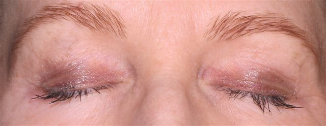 saving your brows and eyelashes on chemotherapy