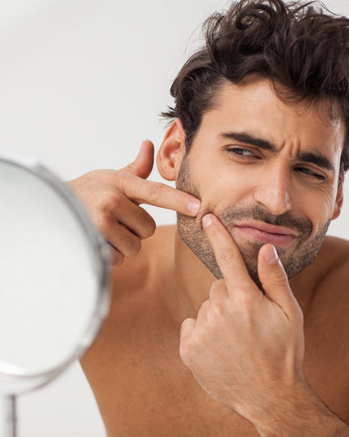 how to pop a pimple push under the pimple to express pus to skin surface