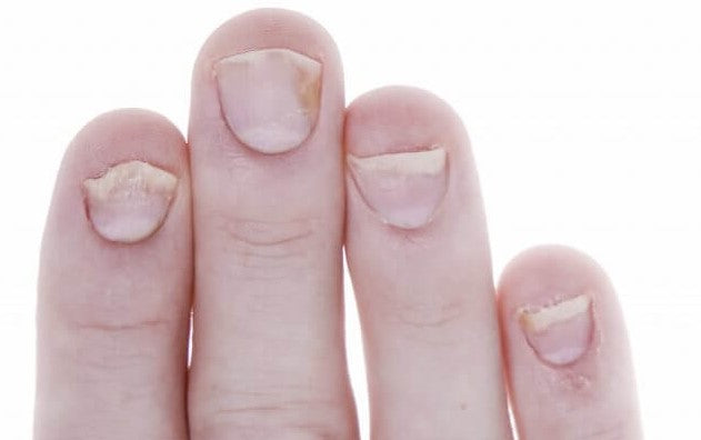 nail psoriasis on fingernails what it looks like