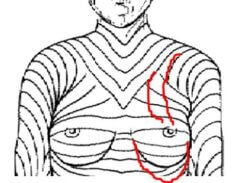 Port scars and placement on the side of the chest in Maximal Skin Tension LInes