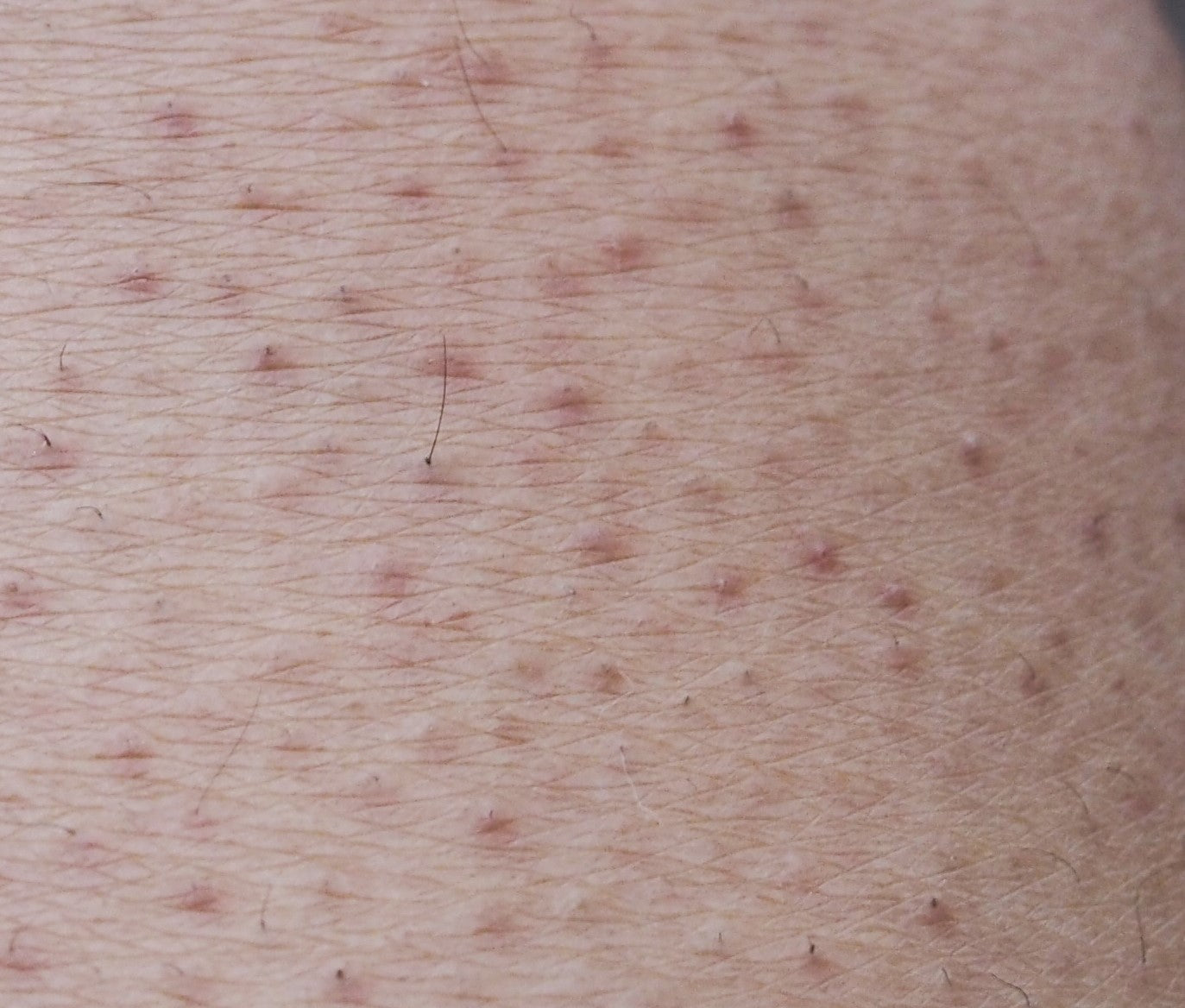 what is keratosis pilaris