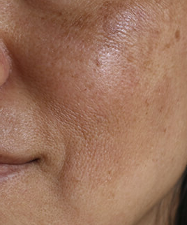 hyperpigmentation and dark spots due to melasma