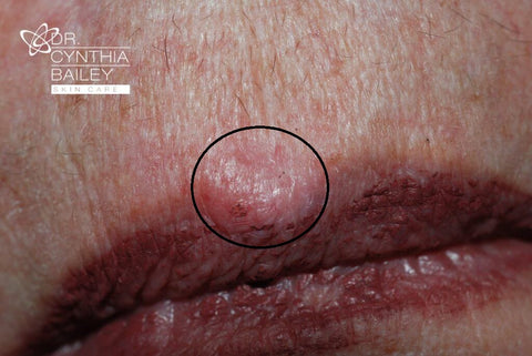 the most common form of skin cancer is basal cell carcinoma