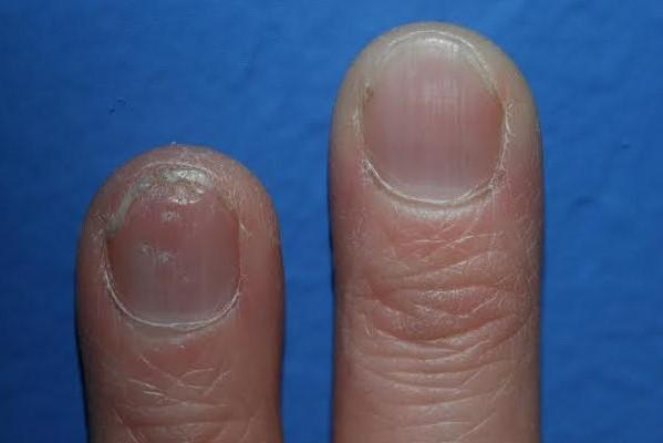 treatment for nail psoriasis image