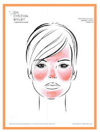 parts of the face at risk for rosacea