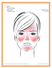 what parts of the face get rosacea