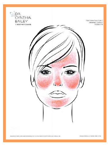 facial redness from rosacea