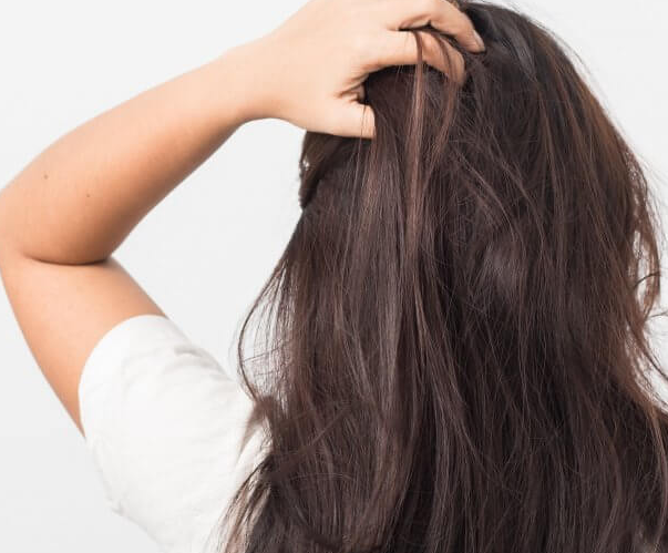 dermatologist's treatment tips for scalp dandruff